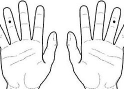 A koreai akupunktúrás rendszer K-K9-es pontja
