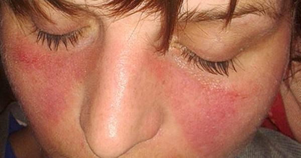 Pillangófoltok az arcon